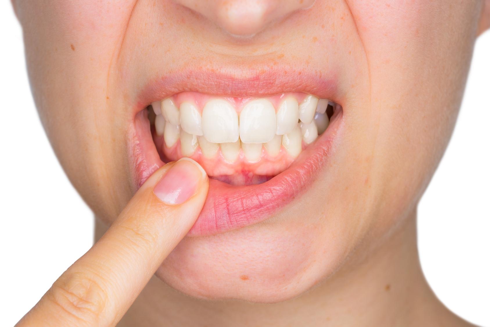 Arzt klärt auf Das Schlimmste, was man seinen Zähnen antun kann!