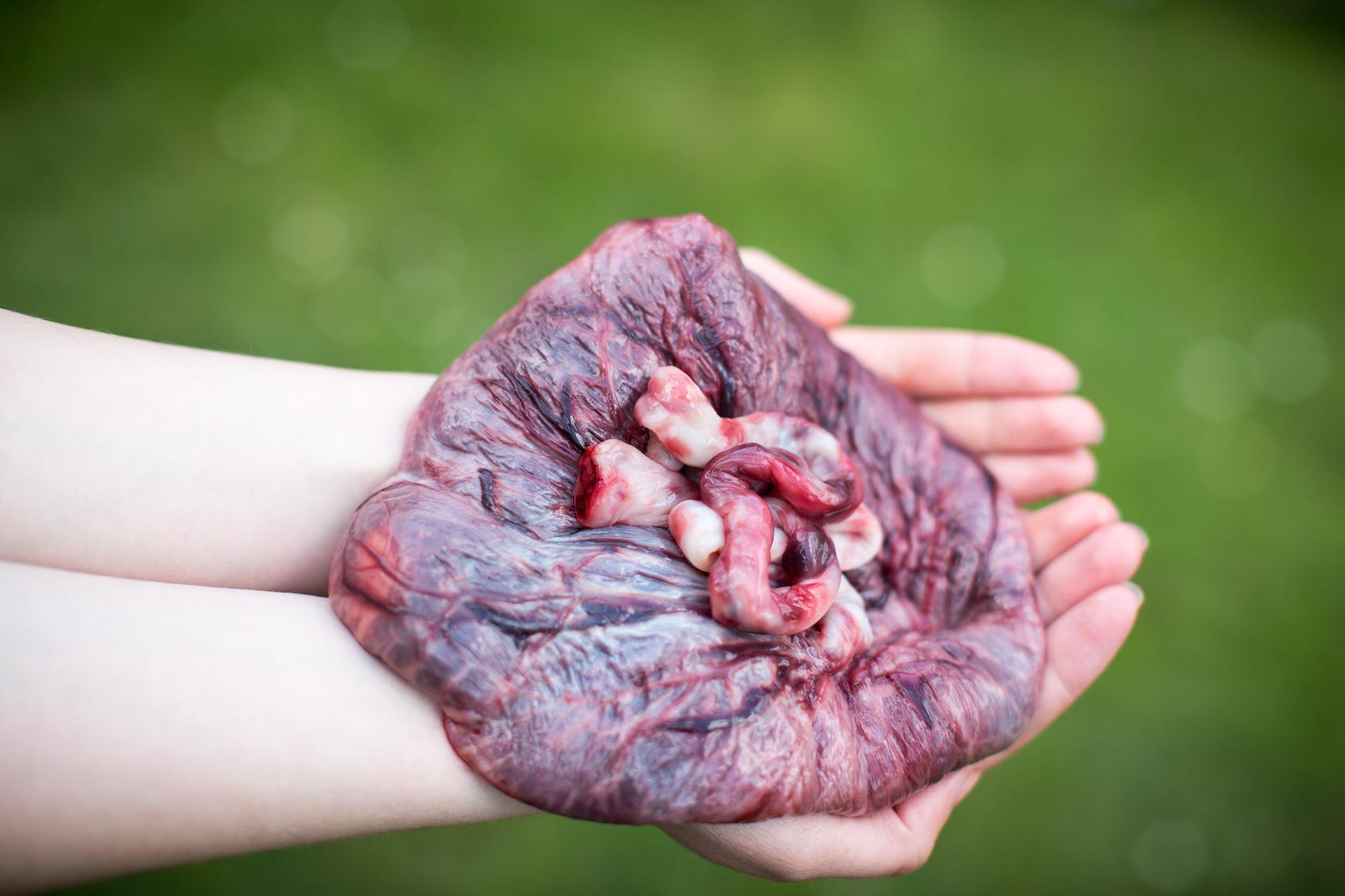 Mutter aß Plazenta: Fast tödliche Folge für Baby!