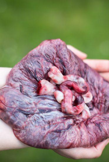 Plazenta-Pillen-Trend: Experten warnen vor schlimmen Folgen für das Baby!